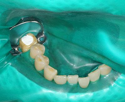 rubber dum,ラバーダム,dental,歯科用,gvbdo